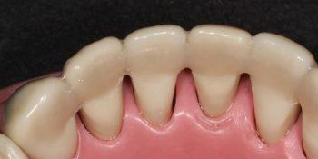 کاربردهای اسپلینت دهان