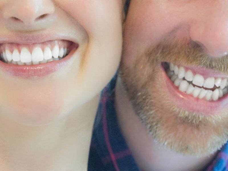 چیزهایی که درباره سفید کردن دندان باید بدانید