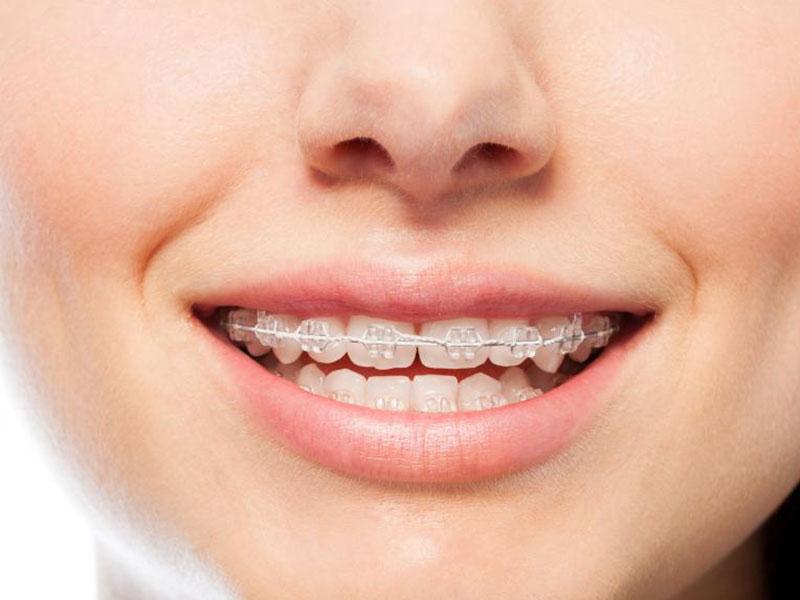 استفاده از نخ دندان در ارتودنسی و گزینه های جایگزین آن