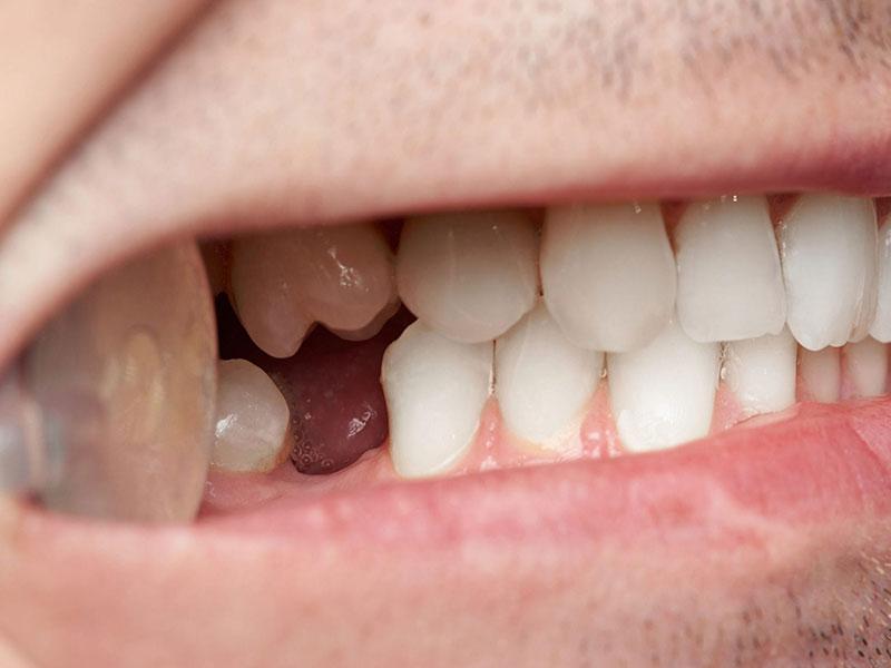گزینه هایی برای جایگزینی دندان های از دست رفته