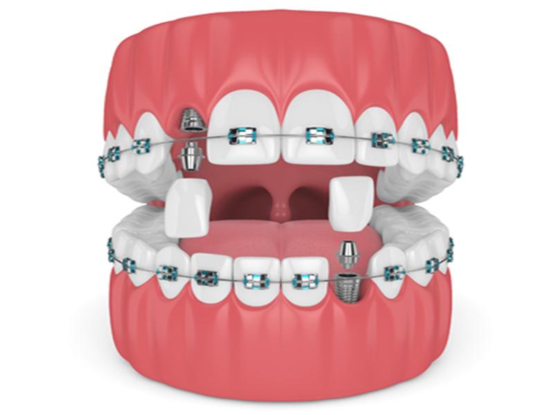 ارتودنسی به همراه ایمپلنت دندان